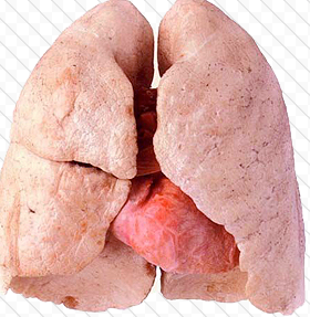 Actual human lungs - photo#17