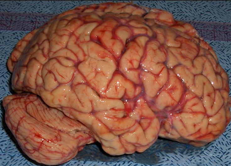 human brain க்கான பட முடிவு